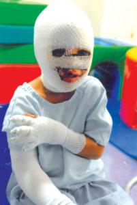 Pa, dogter met erge brandwonde na Kaapse hospitale
